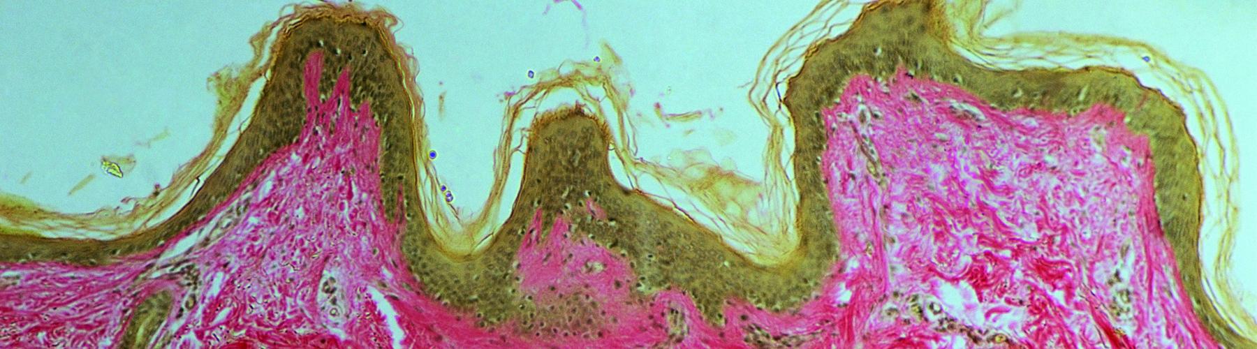 Course Image Ter. farm. de los trastornos dermatológicos, oftalmológicos y otológicos. Agentes farmacológicos de diagnóstico (2ª edición)